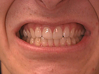 clean white teeth